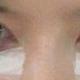 心路历程天生的黑眼圈,一点办法都没有,上学那会带着眼镜看不到,现在工作了,做了矫正近视的手术,每天看...