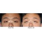 重度上睑下垂:眼睛怎样由睡神变精神