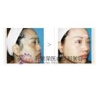 激光祛斑手术案例