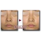 唇情物语(第3话):鼻孔前缘下降手术