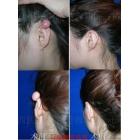 耳廓瘢痕疙瘩手术综合治疗
