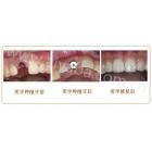 生态美学种植牙案例