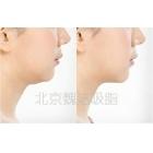 面部微雕吸脂手术对比