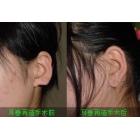 耳部再造手术