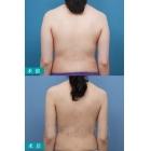 背部抽脂 肩胛部吸脂术照片