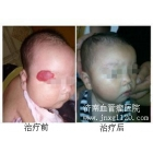 面部混合血管瘤案例