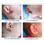 耳垂混合状血管瘤案例