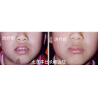 芳芳(化名) 11岁 面部毛细血管瘤