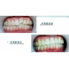 牙齿外伤怎么修复