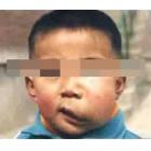 5岁 囊状淋巴瘤
