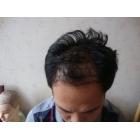 四期脱发的术前术后照片
