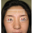 眉毛种植效果对比图