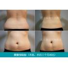 产后吸脂 腰腹部吸脂对比