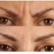 微光逆转术去除眉间纹