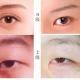割双眼皮为何要同时选择开眼角?