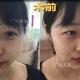 【广州美莱双眼皮手术案例术后7天反馈】