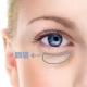 帮你摆脱黑眼圈,重现亮丽!内切祛眼袋有哪些优点呢?