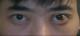 这是我的第二次手术,说实话真痛苦,但是从恢复来看这次的还不错,我只做了左眼,现在看来左眼要比右眼大,...